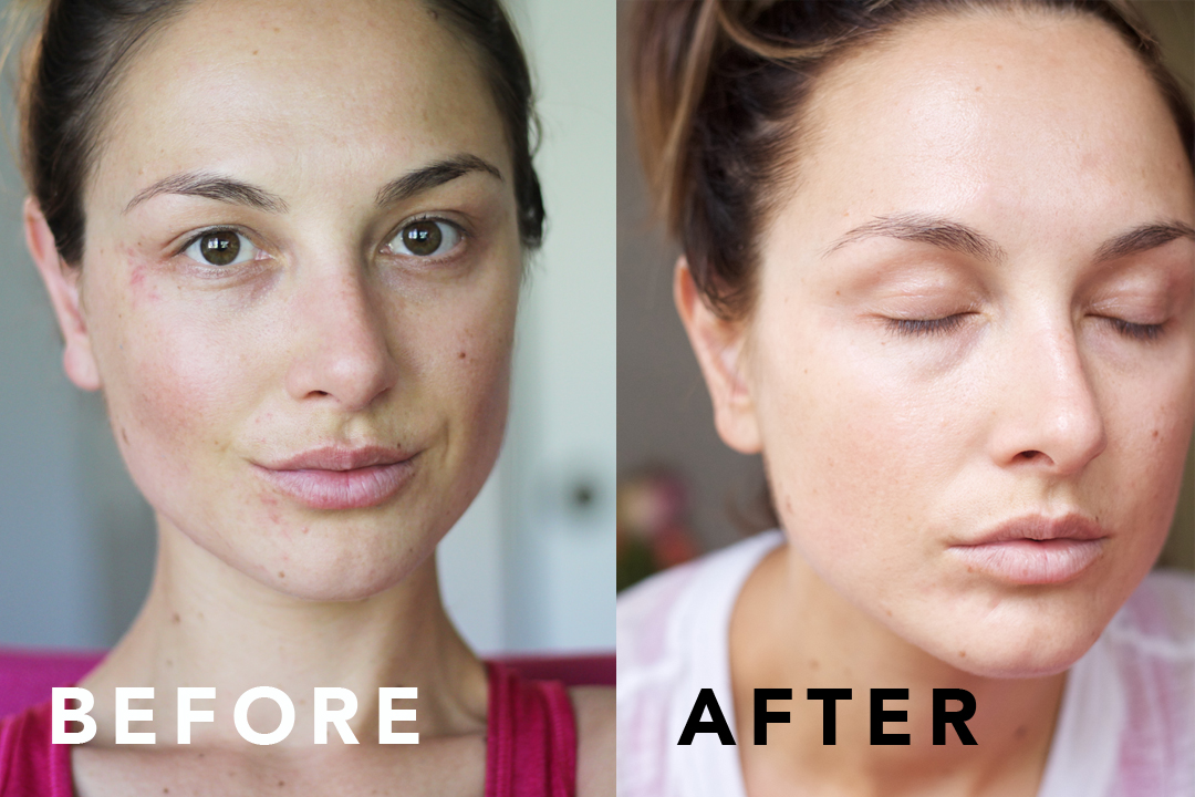 How To Treat Rosacea On Face Naturally